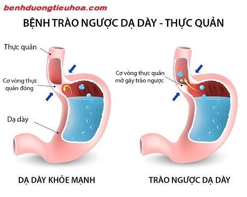 Bệnh trào ngược dạ dày thực quản: Thuốc chữa và cách điều trị