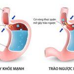 Triệu chứng trào ngược dạ dày thực quản