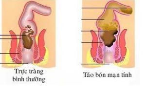 nhung-cach-chua-tao-bon-hieu-qua-benhduongtieuhoa2