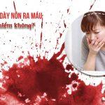 nôn ra máu do loét dạ dày