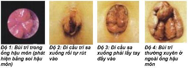 lam-gi-khi-bi-loi-bui-tri-ra-ngoai