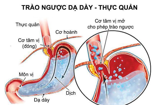 Trào ngược dạ dày gây đau thắt khi ăn hoặc khi đói