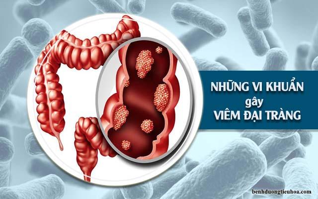 các vi khuẩn gây viêm đại tràng