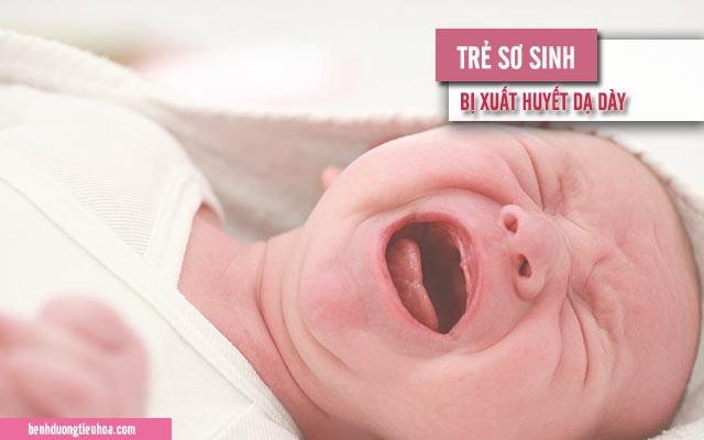 những điều cần biết về xuất huyết dạ dày ở trẻ mới sinh