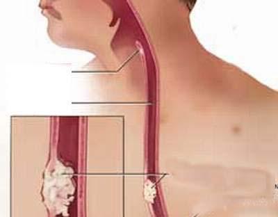 Bị chít hẹp thực quản do trào ngược dạ dày