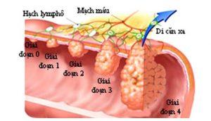 Viêm đại tràng co thắt gây ung thư đại tràng