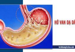 những điều cần biết về hở van dạ dày