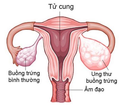 Nhung-nguyen-nhan-gay-dau-bung-duoi-thuong-gap10