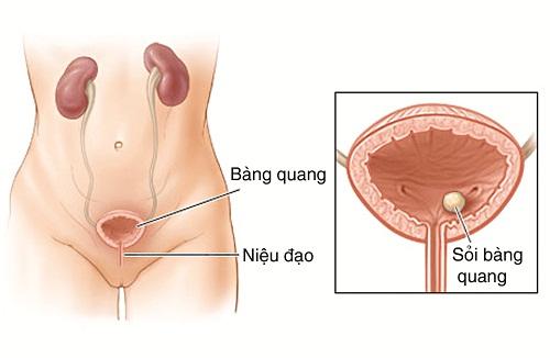 Nhung-nguyen-nhan-gay-dau-bung-duoi-thuong-gap6