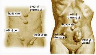 thong-tin-ve-chung-thoat-vi-thanh-bung5