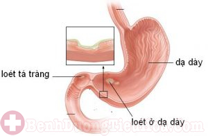 Vi khuẩn Hp gây viêm loét dạ dày tá tràng