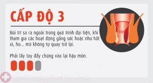 Bệnh trĩ nội độ 3