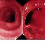 Hình ảnh nội soi viêm đại tràng xuất huyết