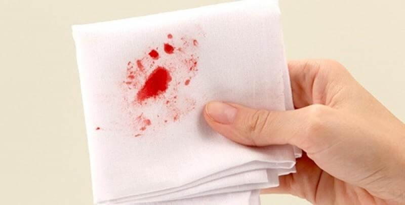 Đau rát chảy máu hậu môn là bệnh gì?