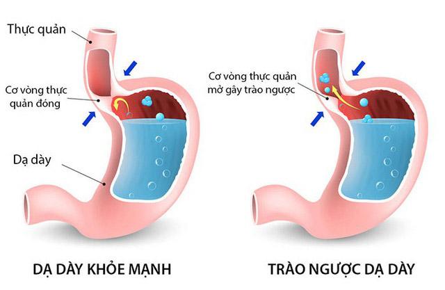 triệu chứng trào ngược dạ dày thường gặp