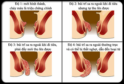 Bệnh trĩ nội được chia thành 4 độ dựa vào độ sa của búi trĩ