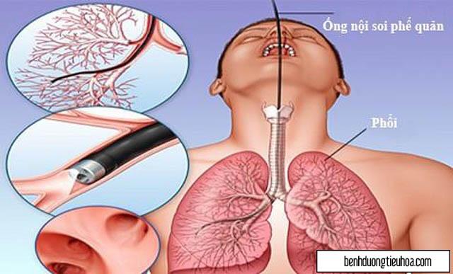 Những cách chẩn đoán bệnh viêm đại tràng co thắt