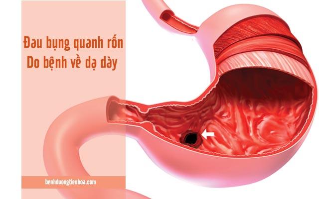 đau dạ dày gây đau quặn xung quanh rốn