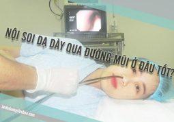 nên nội soi dạ dày bằng đường mũi ở bệnh viện nào