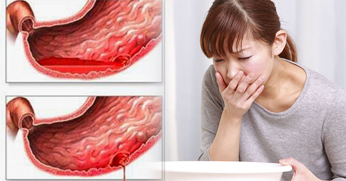 Xuất huyết dạ dày thường đi kèm các triệu chứng như: nôn ra máu, đi ngoài phân đen.